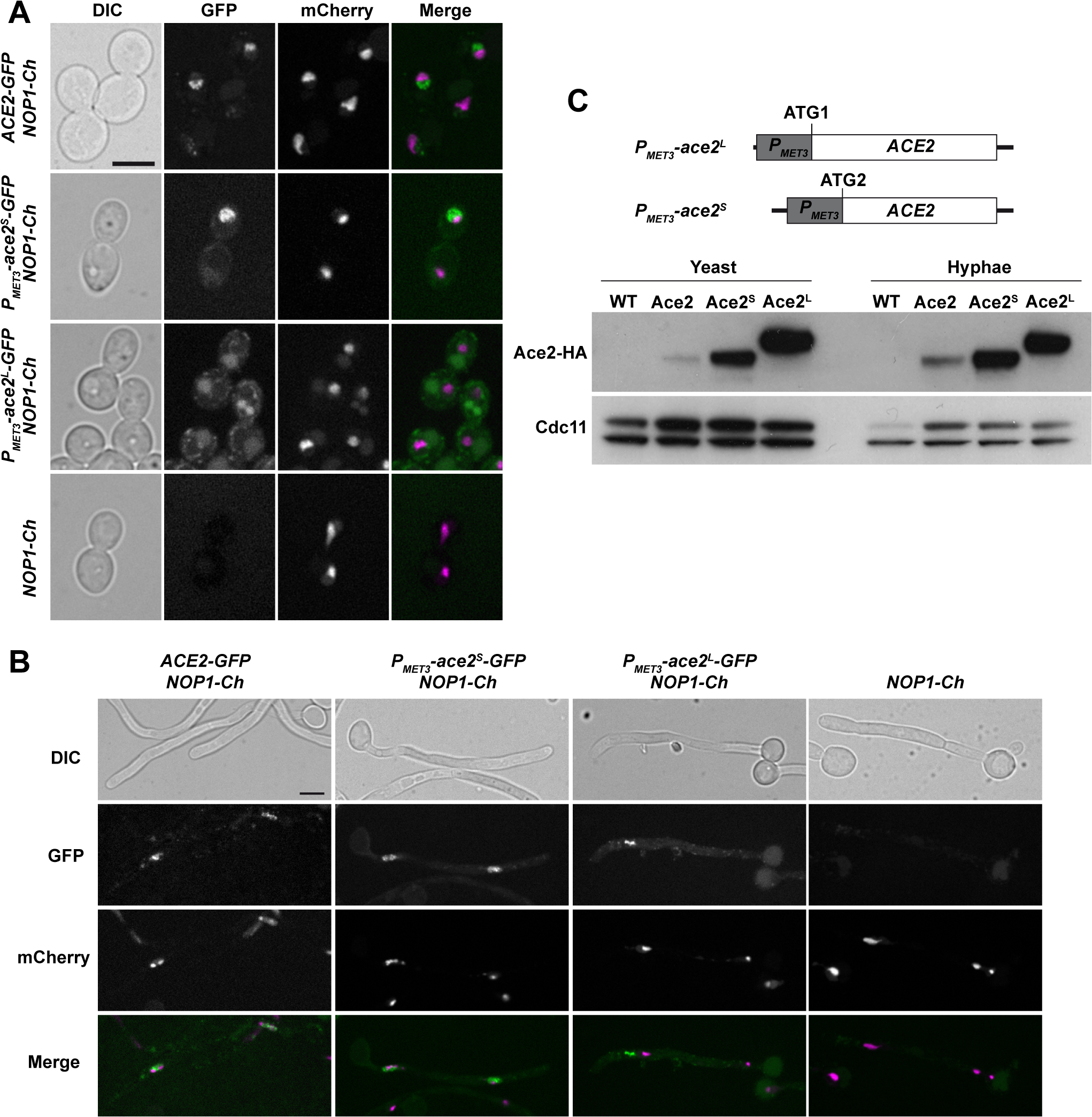 Localization of Ace2 in yeast and hyphae.