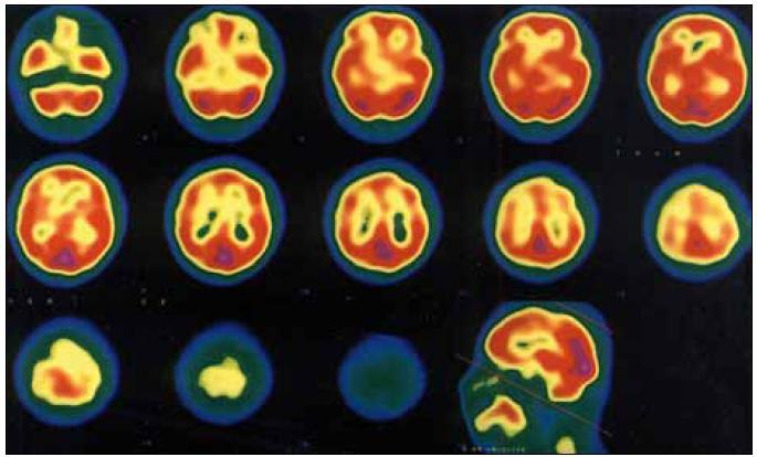 Obr. 2b. SPECT – normální CBF v obou hemisférách v interiktální fázi. Se souhlasem redakce časopisu Bolest.