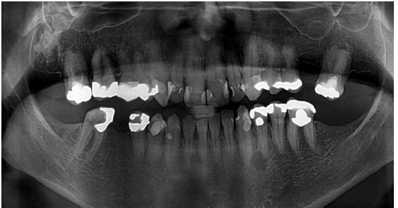 Ortopantomogram pacientky z obr. 5 s nálezem atypicky mohutné mandibuly při akromegalii. Kost jeví normální strukturu, stálý chrup je nekompletní (foto: archiv Stomatologické kliniky LF UK a FN Hradec Králové)