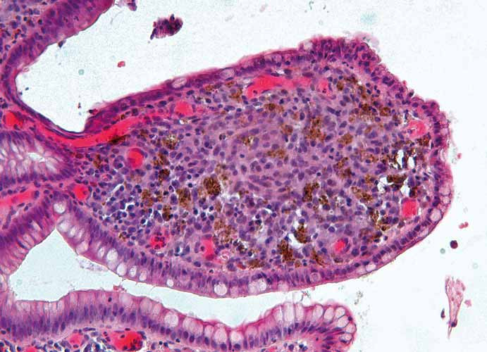 Histopatologický obraz sliznice ilea – střevní klk je téměř kompletně vyplněný atypickými nádorovými melanocyty a četnými roztroušenými melanofágy, barvení hematoxylin-eozinem (zvětšení 100×). Fig. 6. Histopathologic image of the ileum mucosa – intestinal villus is almost completely filled with atypical neoplastic melanocytes and numerous scattered melanophages, hematoxylin and eosin stain (original magnification ×100).
