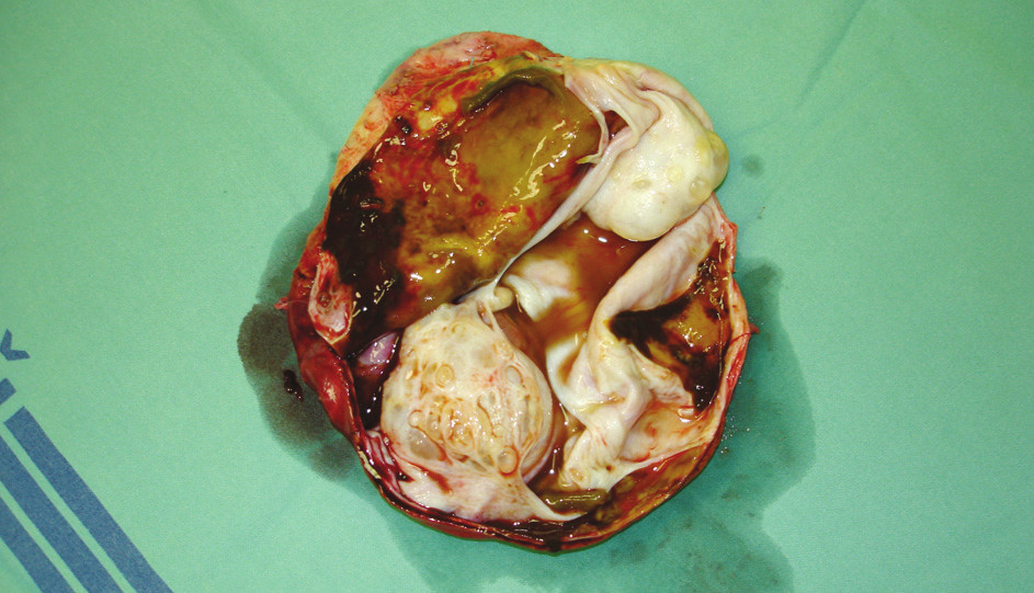 Cystadenom jater – preparát – případ 3  Photo 3. Liver cystadenoma – a preparation – case No. 3