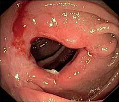 Endoskopická balonová dilatace stenotické anastomózy u nemocného s Crohnovou chorobou. A – stenóza před dilatací. B – dilatační balon zavedený do stenózy. C – lumen střeva po dilataci.