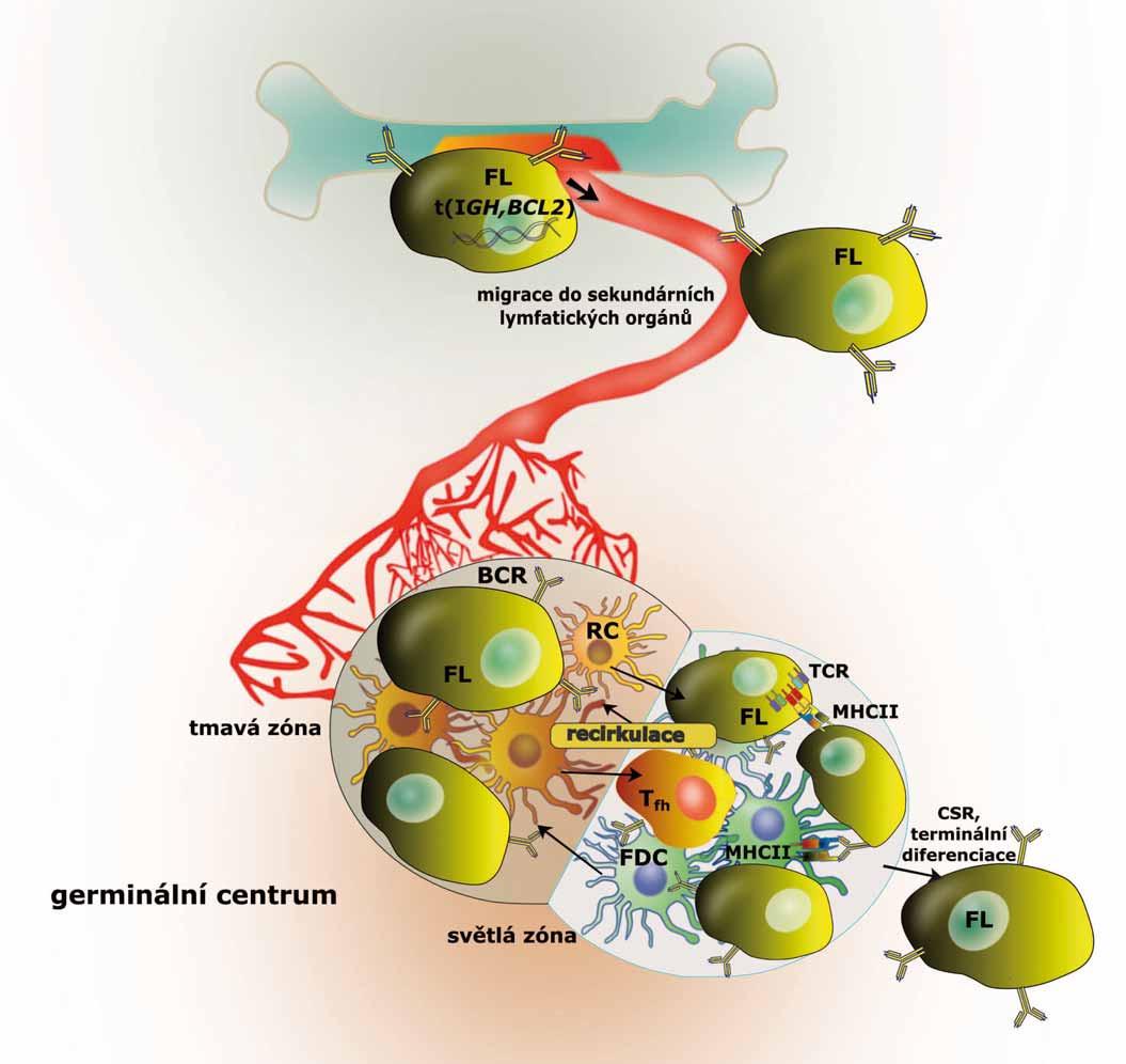 Schematická ilustrace vývoje maligní FL buňky. Po translokaci t(14,18) migrují premaligní B lymfocyty do sekundárních lymfatických orgánů, kde mohou akumulovat další mutace, a stát se tak maligními buňkami odpovědnými za vznik FL. FL – folikulární lymfom, <i>BCL2</i> – B-cell lymphoma 2, BCR – B buněčný receptor, CSR – izotypový přesmyk, FDC – folikulárně dendritická buňka, <i>IGH</i> – gen pro těžký řetězec imunoglobulinu, MHCII – hlavní histokompatibilitní komplex II, RC – retikulární buňka, TCR – T buněčný receptor, T<sub>fh</sub> – pomocné folikulární T lymfocyty