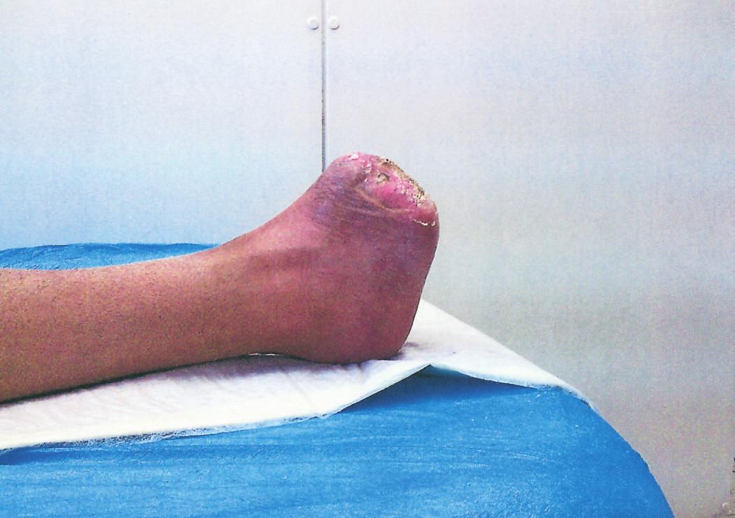 Zhojený defekt, funkce nohy plně zachována, transplantát mimo našlápnou zónu Fig. 4. The healed defect, foot functions fully preserved, the transplant is aside from the stepping zone