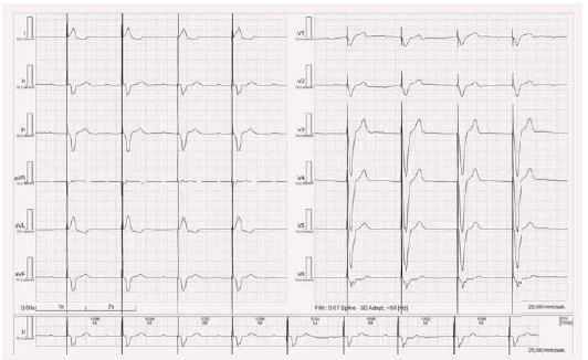 EKG stimulace z hrotu pravé komory unipolární.