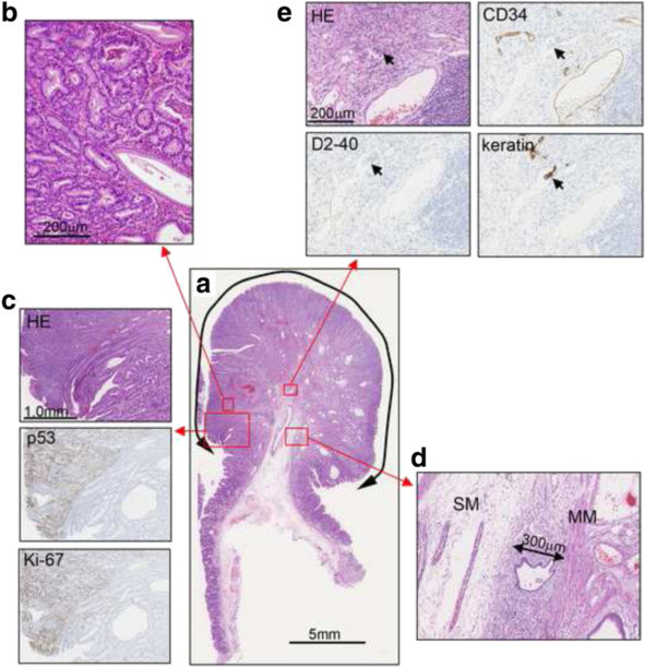 Histological findings. a. Hematoxylin and eosin (HE) staining. b. High magnification image of the boxed area. c. HE, p53, and Ki-67 stainings of the border between the hyperplastic glands and the tumor glands. The tumor lesions were strongly positive for p53 and Ki-67. d. Submucosal invasion in the stalk, with an invasion depth of 300 μm (MM, muscularis mucosae; SM, submucosal layer). e. HE, cluster of differentiation 34 (CD34), D2-40, and keratin staining. In CD34-negative and D2-40-positive lymph ducts, keratin-positive cells with acidophilic cytoplasm and large nuclei were observed, indicating lymphatic invasion (arrows)