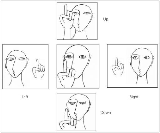 Fig. 5. Examination of saccades. The target is placed in front of the patient and instructions given to look at it. The target is made to disappear from centre and re-appear to one side, when the patient is asked to change the line of sight and to view it. This procedure is repeated centreright-centre-left-centre three or four times alternately. Vertical saccades are examined by alternating centre-up-centre-down-centre.