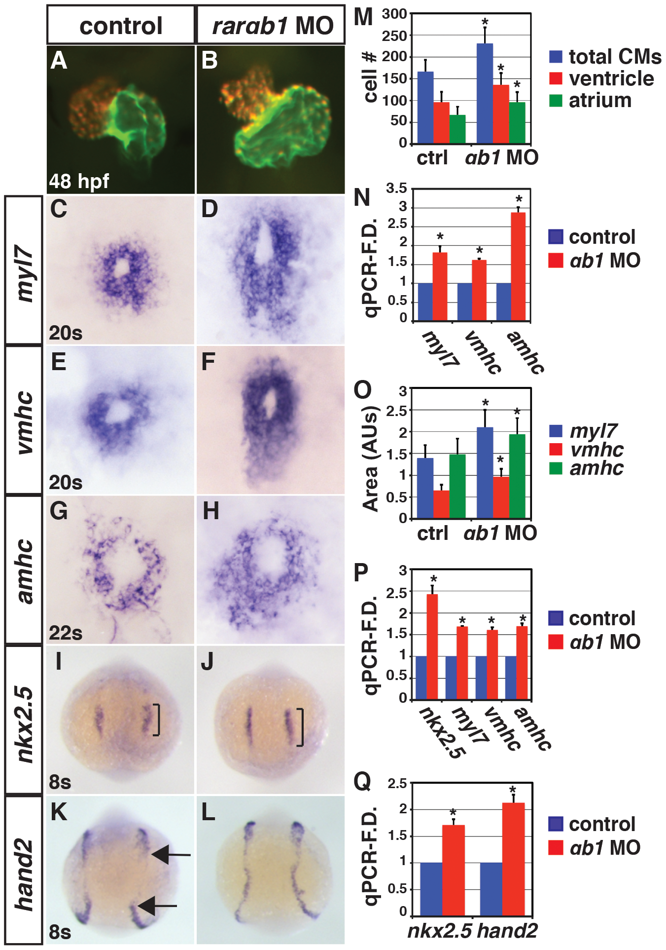 RARαb1 deficient embryos have enlarged hearts with increased CM number.