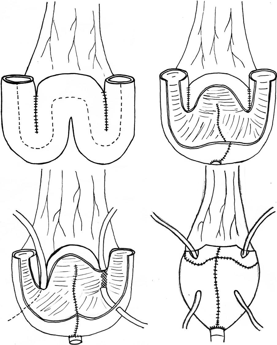 """Princip konstrukce ortotopního rezervoáru typu """"Mansoura pouch"""" (volně podle http://www.urotunisia.com/ biblio/Mansoura/further.htm) Fig. 1. Construction principles of the """"Mansoura pouch"""" orthotopic reservoir"""