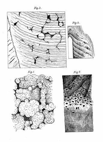 Čermákovy lakuny v dentinu. Ilustrace z jeho dizertační práce