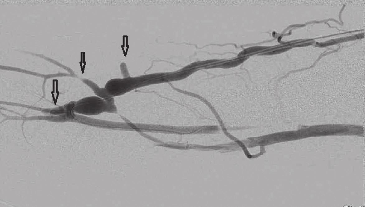 Fistulografie po podvazu 3 kolaterálních žil, šipky Fig. 10: Fistulogram after ligation of 3 collateral veins; arrows