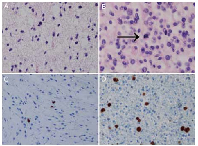 Fig. 3. 5-aminolevulic acid (5-ALA) fluorescing and nonfluorescing tissue taken from tumor in patient 2.