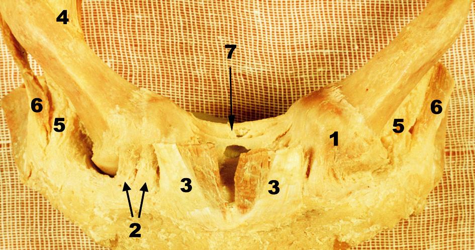 Oba sternoklavikulární klouby s přilehlou částí manubrium sterni – přední pohled, vpravo kloubní pouzdro částečně odstraněno. 1 – přední plocha pouzdra SC kloubu, 2. lig. sternoclaviculare ant., 3 – sternální porce m. sternocleidomastoiudeus, 4 – klavikulární porce m. sternocleidomastoideus, 5 – lig. costoclaviculare, 6 – šlacha m. subclavius, 7 – lig. interclaviculare Fig. 1. Both sternoclavicular joints with the adjacent part of the manubrium sterni – anterior view, the joint capsule was partially removed on the right side. 1 – anterior surface of the capsule of SC joint, 2 – anterior sternoclaviculare ligament, 3 – the sternal portion of sternocleidomastoid muscle, 4 – the clavicular portion of sternocleidomastoid muscle, 5 – costoclavicular ligament, 6 – tendon of subclavius muscle, 7 – interclavicular ligament