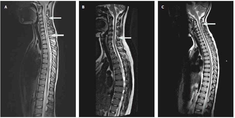 Obr. 1. Ukázky nálezů na MR míchy. Snímky zobrazeny v T2 vážené sekvenci s nálezem hyperintenzních lézí. Obr. 1A) Víceložiskové postižení míchy u pacienta s RS. Obr. 1B) Longitudinální extenzivní postižení míchy u pacientky s NMOSD. Obr. 1C) Solitární zánětlivé ložisko imitující míšní tumor. Fig. 1. Examples of some magnetic resonance imaging findings. Sagittal T2-weighted magnetic resonance imaging of the spine showing hyperintensive lesions. Fig. 1A) Multiple lesions in a patient with multiple sclerosis. Fig. 1B) Longitudinaly extensive myelitis in a patient with neuromyelitis optica spectrum disorder. Fig. 1C) Solitary lesion imitating a spinal cord tumor.
