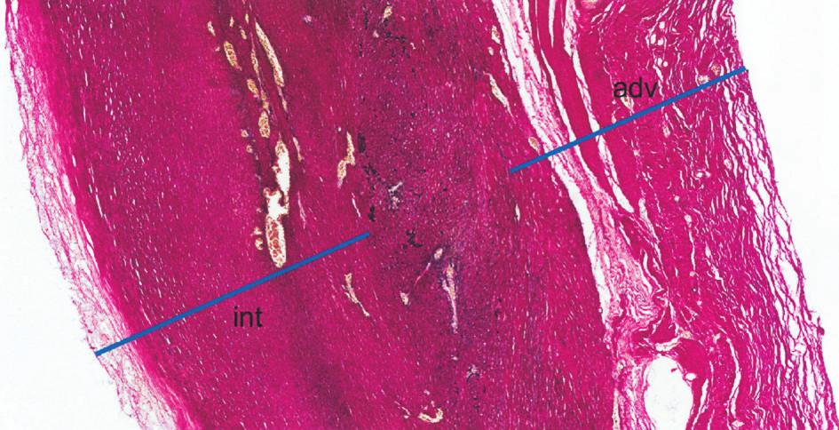 Histologie: Histotopogram resekované části stěny vzestupné aorty (barvení elastika – van Gieson). Stěna je výrazně ztluštělá, zejména fibrózním ztluštěním intimy (int) a adventicie (adv); mezi nimi je zjizvená, atrofická médie, s jen zbytky elastické složky (fragmenty černých hrubých vláken). Médie i intima jsou vaskularizované. Jde o obraz pozdního, jizevnatého stadia choroby, již bez nekróz a bez zánětlivých infiltrátů Fig. 4. Histology: A histotopographic study of the resected part of the ascending aortic wall (elastic – van Gieson stain). The wall is significantly thickened, in particular due to fibrous intimal (int) and adventitial (adv) thickening; the inbetween media is scarred and atrophic, with remnants of the elastic component (fragments of black coarse fibres). The media and intima layers are vascularized. The above is a picture of late, scarring disease stage, already without necroses and inflammatory infiltrations