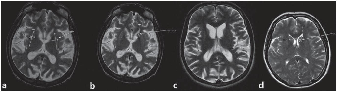 MR snímky mozgu pacienta z 1. kazuistiky.  a) postihnuté putamen, b) atrofické nucleus caudatum, c) dilatácia komorového systému a kortikálna atrofia, d) je na porovnanie ilustratívna snímka mozgu bez patologického nálezu. (Snímky získané v spolupráci s MUDr. M. Spurným, Novamed, Banská Bystrica.)