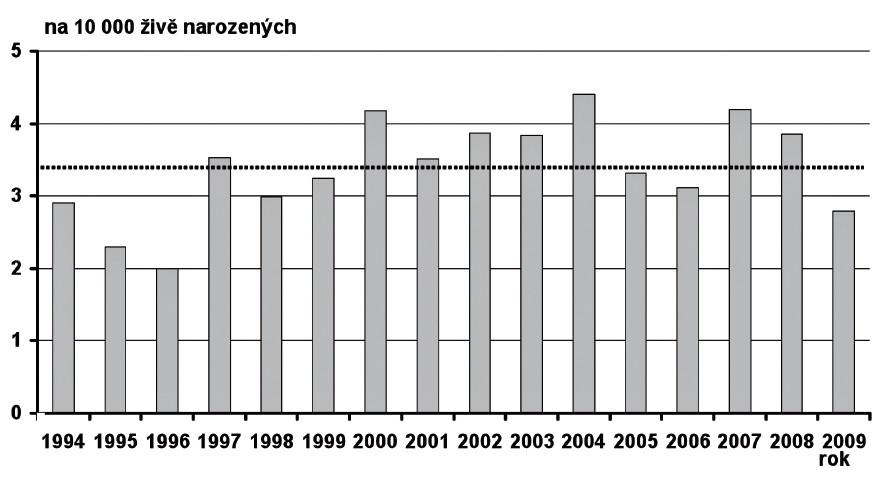 Prevalence transpozice velkých cév v České republice v období 1994–2009 Fig. 8. Prevalence of large vessel transposition in the Czech Republic in 1994–2009