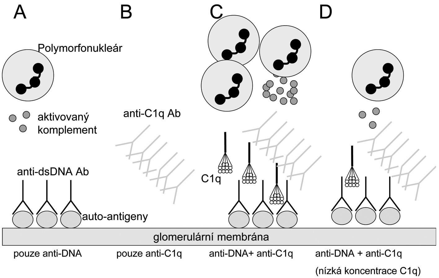 Hypotéza: Rozvine se lupusová nefritida či nikoliv? A) Pacienti s anti-ds DNA protilátkami (anti dsDNA- dsDNA imunokomplexy) a bez anti-C1q protilátek mají mírnou a/nebo regulátory komplementového systému efektivně kontrolovanou lupusovou nefritidu.  B) Nemocní pouze s anti-C1q protilátkami nebudou mít renální postižení, protože to vyžaduje přítomnost protilátek proti klasickým lupusovým antigenům v glomerulu.  C) Nemocní s anti-dsDNA protilátkami v glomerulu a vysokými titry anti-C1q protilátek budou mít těžkou lupusovou nefritidu díky zesílení aktivace zánětu prostřednictvím klasické cesty a influxu zánětlivých buněk.  D) pacienti s anti-dsDNA protilátkami a anti-C1q protilátkami nemusí (zatím) mít lupusovou nefritidu, pokud jsou lokální koncentrace C1q nízké a nedosahují prahu aktivace komplementu. Upraveno dle Fliermana (45).
