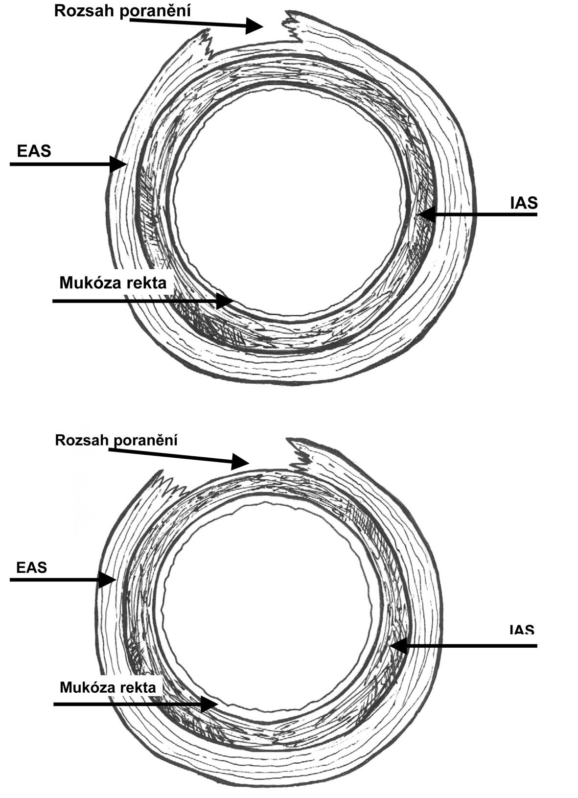 Obr. 2, 3. Ruptura perinea stupně 3b podle RCOG