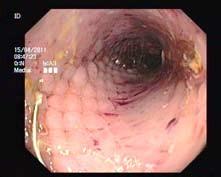 Endoskopický obraz rozvinutého stentu. Fig. 2. Endoscopic image of developed stent.