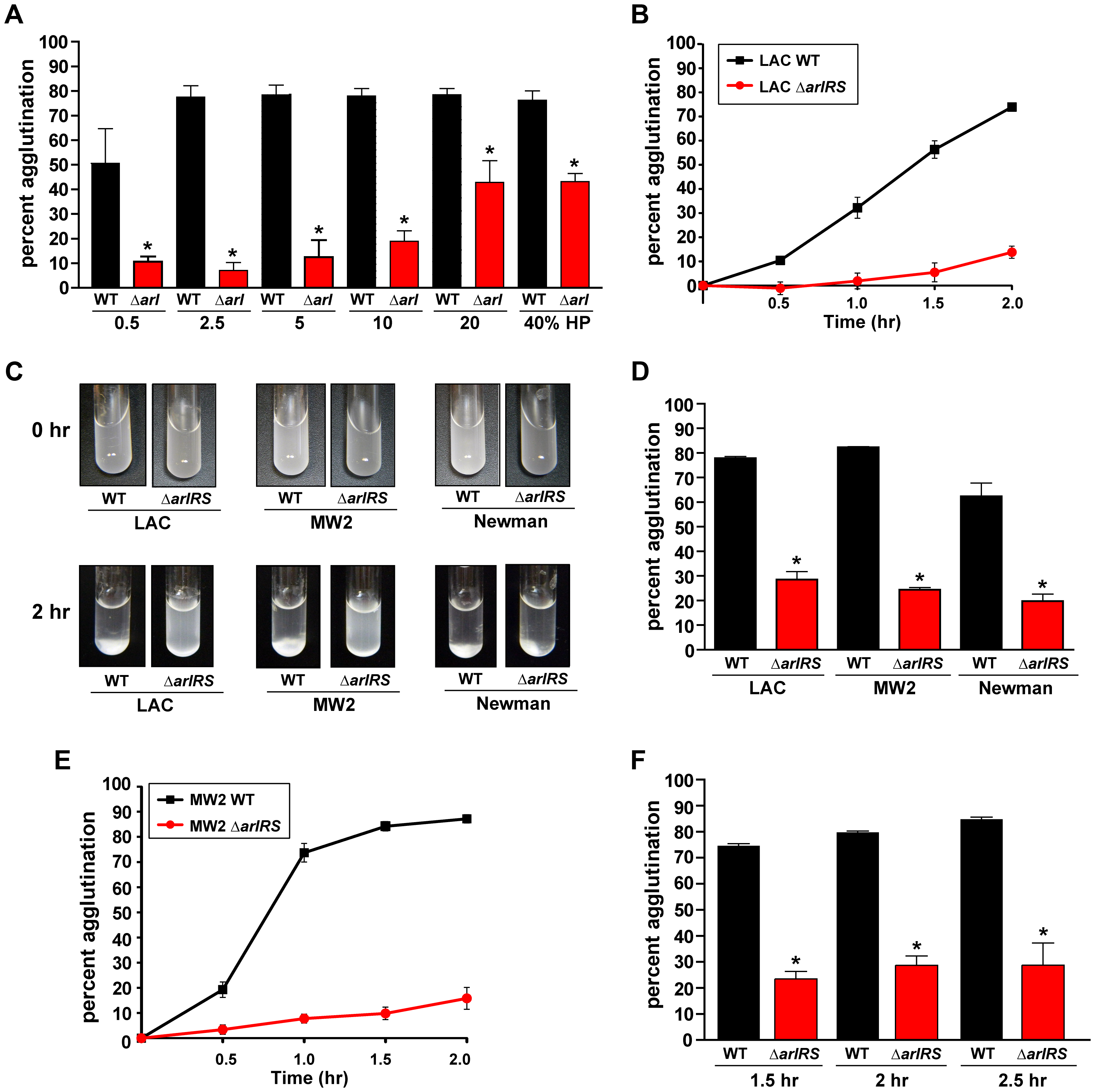 Agglutination of <i>S. aureus</i> is induced by human plasma and dependent on ArlRS.