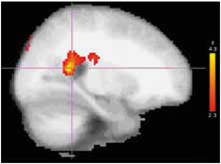 Fig. 2. BoNT treatment effect in group A: location, posterior cingulate/precuneus region of the most significant decrease of activation after BoNT treatment (group post-hoc contrast overlaid on an MNI anatomical template). Right side of the brain is displayed on the left.