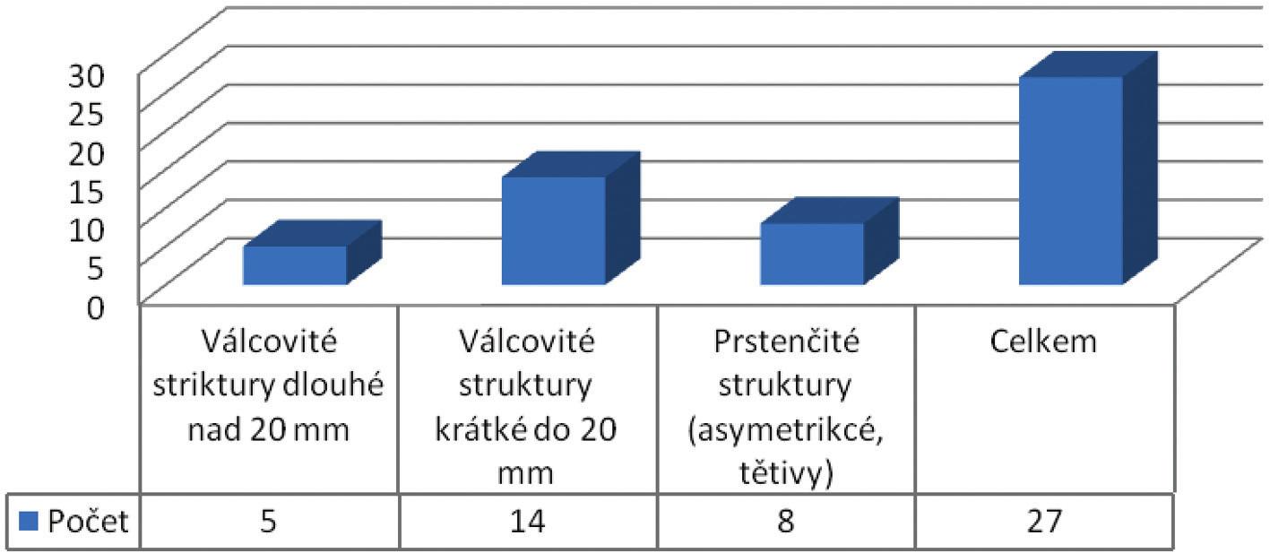 Typy diagnostikovaných striktur kolorektální anastomózy ( N=27) Graph 1: Types of diagnosed strictures of the colorectal anastomosis (N=27)