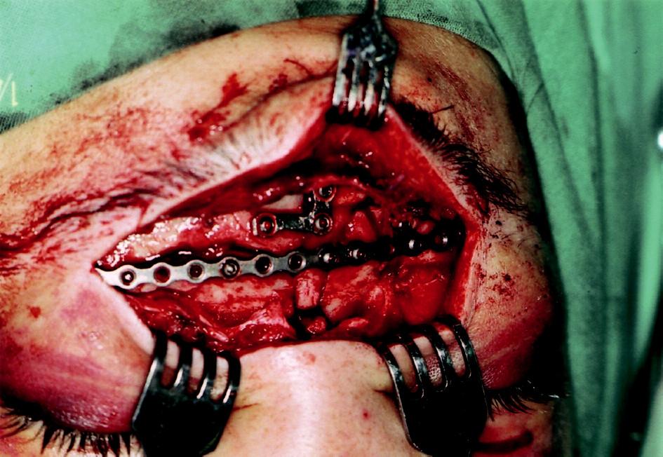 Pacient zo sledovaného súboru so zlomeninou vo frontálnej oblasti po repozícii a fixácii fragmentov. Chirurgický prístup v oblasti obočia.
