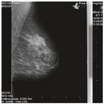 Mamografický obraz L prsu