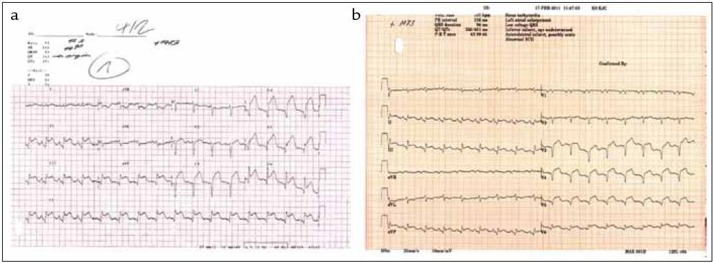 EKG se známkami akutního infarktu myokardu s QS a elevacemi ST úseku ve II, III, aVF, V<sub>2</sub>–V<sub>6</sub> při přijetí pacientky k hospitalizaci (a) s mírnou regresí nálezu při propuštění z nemocnice (b).