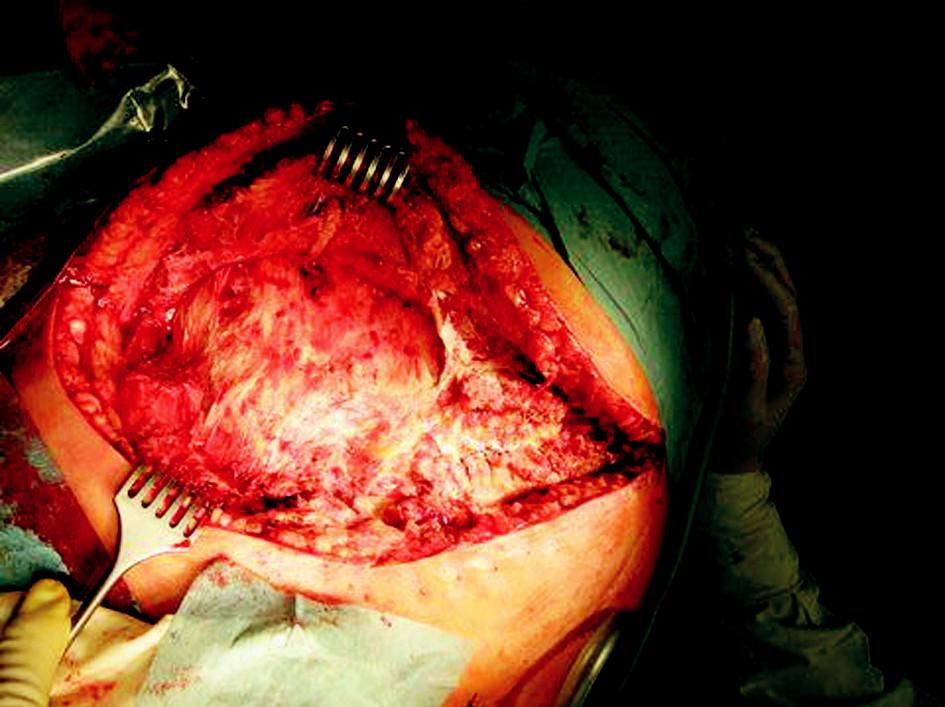 Operační nález Obr. 1. Intraoperative findings
