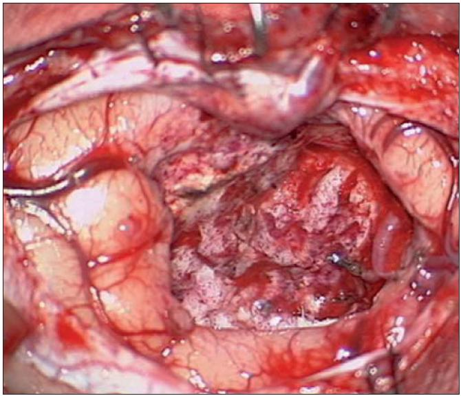 Peroperační nález po radikální resekci tumoru.
