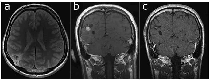 Fig. 1a. T2-weighted TSE sequence. A hypointense nodule is visible within a wedge-shaped lesion in the angular region. Fig. 1b. Post-contrast T1-weighted SE sequence shows an area of nodular enhancement attached to a hypointense lesion. Fig. 1c. Post-contrast T1-weighted SE sequence six months after resection of the lesion. Minimal enhancement was detected in the resected region.