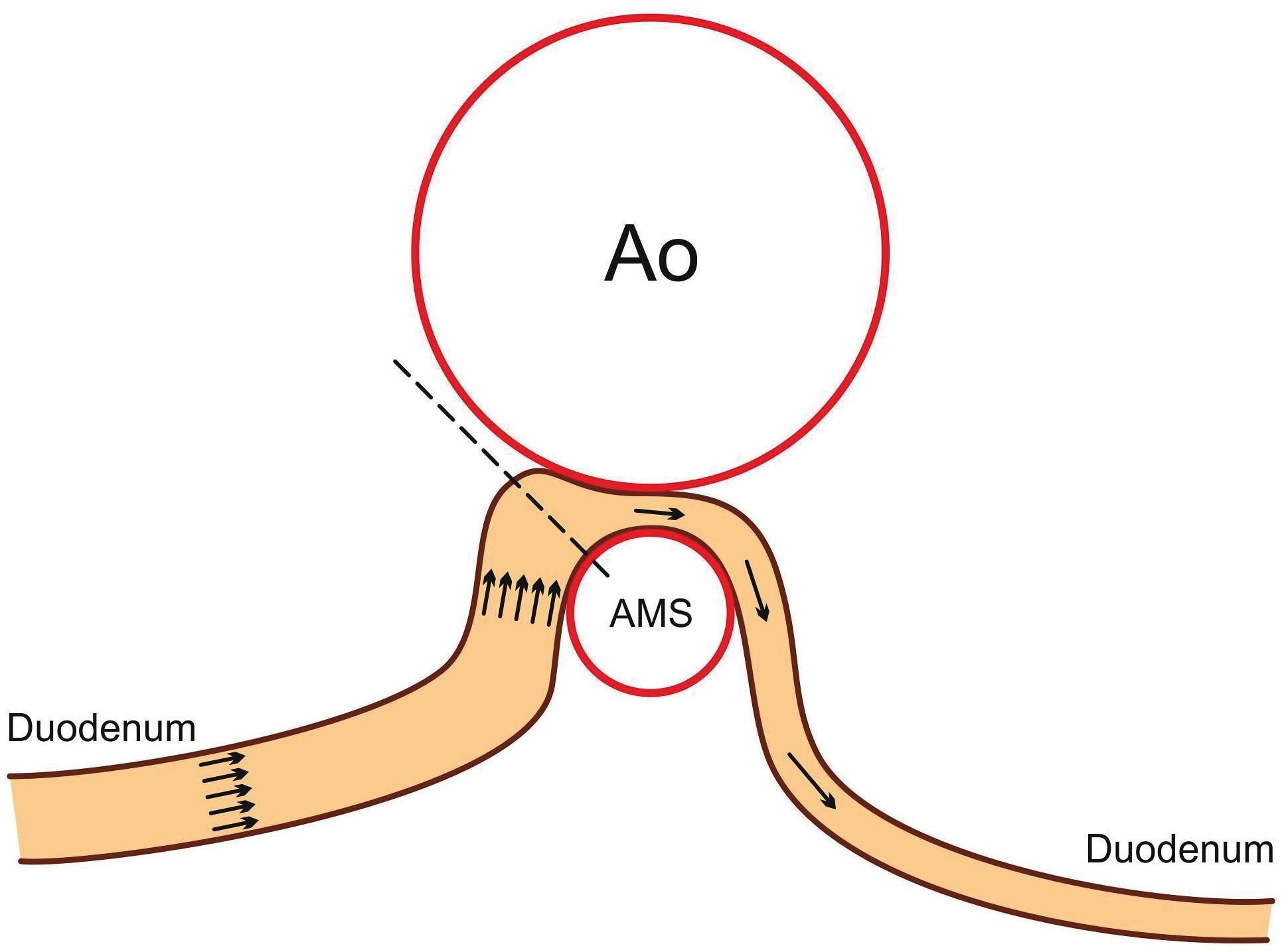 Schematické znázornění abnormální morfologie syndromu horní mezenteriální arterie. Fig. 1. Abnormal morphology in superior mesenteric artery syndrome.