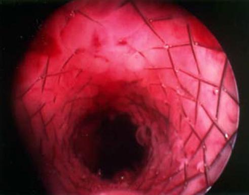 UroLume stent umístěný v prostatě.