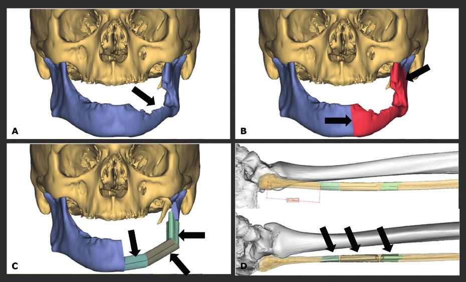 Spinocelulární karcinom ústní dutiny s destrukcí mandibuly, předoperační plánování.
