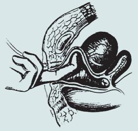 Kolposuspenze dle Burche – prsty levé ruky operatéra elevují postranní klenbu poševní.
