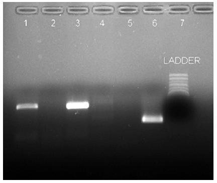 Vyhodnotenie vyšetrenia RT-PCR, po prebehnutí elektroforézy v agarózovom géle, na prítomnosť vírusov chrípky typu A a B Neznáma vzorka označená číslom 1 bola negatívna na prítomnosť vírusu chrípky typu B a zároveň pozitívna na prítomnosť vírusu chrípky typu A, bez bližšej identifikácie. Následne bola u tejto vzorky vykonaná real-time PCR na potvrdenie prítomnosti pandemickej chrípky typu A/ H1N1. Vzorka č. 2 bola negatívna na prítomnosť vírusov chrípky typu A aj B. Popis jednotlivých dráh: 1 – neznáma vzorka, chrípka A; 2 – negatívna kontrola, chrípka A; 3 – pozitívna kontrola, chrípka A; 4 – neznáma vzorka, chrípka B; 5 – negatívna kontrola, chrípka B; 6 – pozitívna kontrola, chrípka B; 7 – molekulový štandard  Fig. 1. Evaluation of RT-PCR analysis, following agarose gel electrophoresis, for the detection of type A and B influenza viruses. The unknown specimen numbered 1 was influenza B virus negative while influenza A virus positive, without further identification. Subsequently, the specimen was tested by real-time PCR for the confirmation of pandemic influenza A/H1N1. Specimen 2 was influenza A and B virus negative. Lanes: 1 – unknown specimen, influenza A; 2 – negative control, influenza A; 3 – positive control, influenza A; 4 – unknown specimen, influenza B; 5 – negative control, influenza B; 6 – positive control, influenza B; 7 – molecular standard