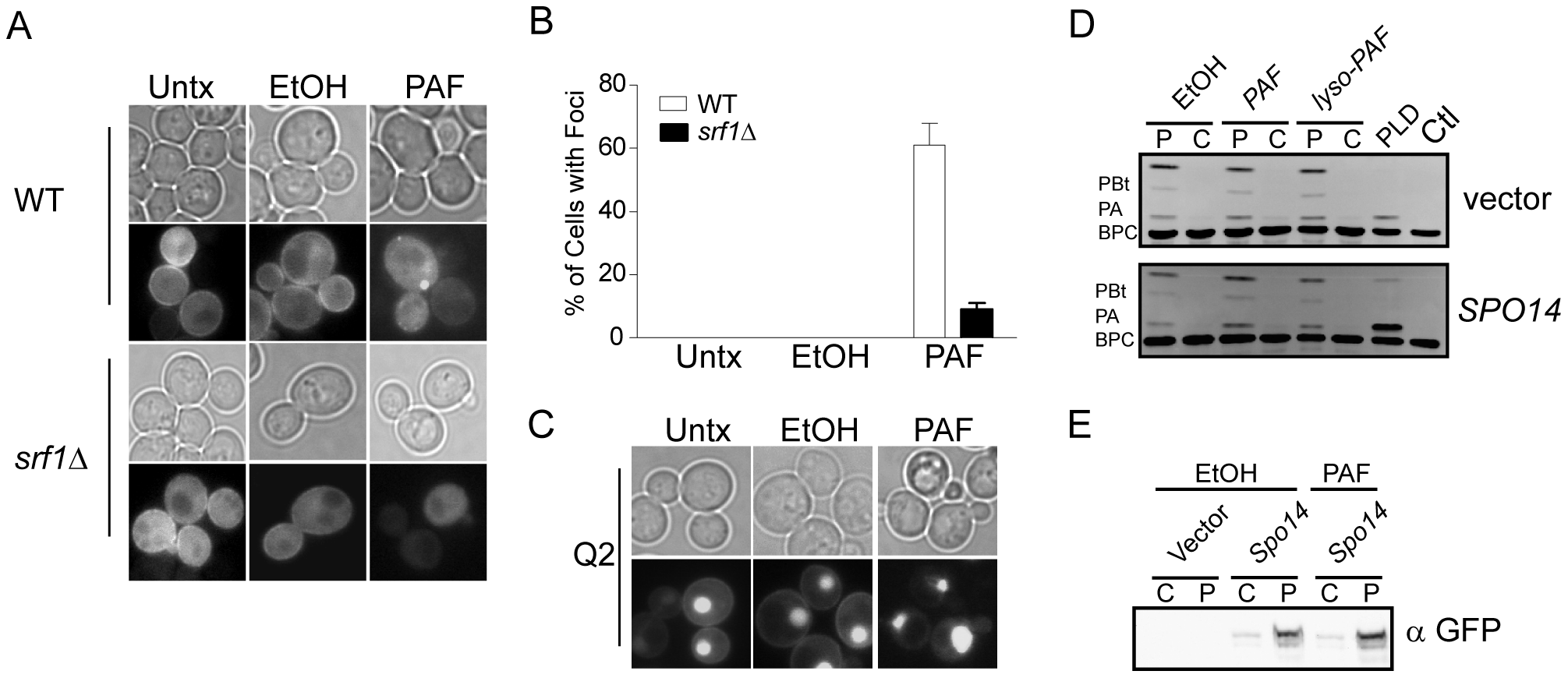 C16:0 PAF treatment impacts the subcellular localization of PLD but not its catalytic activity.