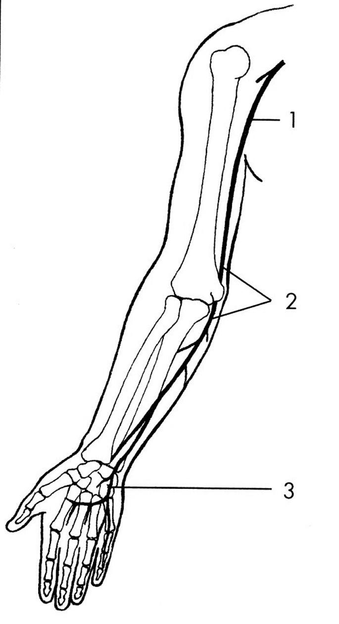 N. ulnaris – místa komprese. 1 – v axile, 2 – v širší oblasti lokte, 3 – na zápěstí a v dlani.