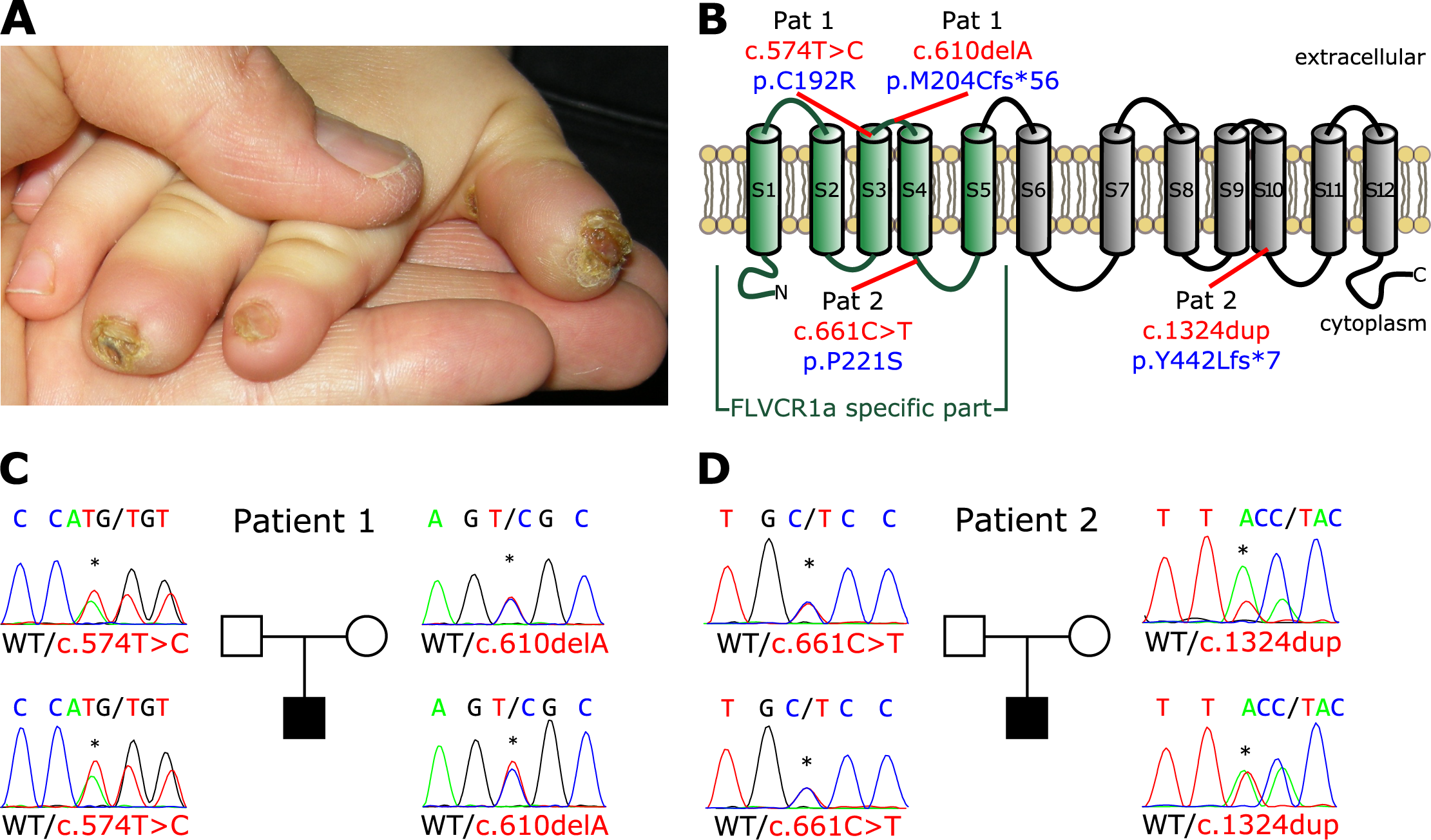 Mutations in the <i>FLVCR1</i> gene cause Sensory Neuropathy.