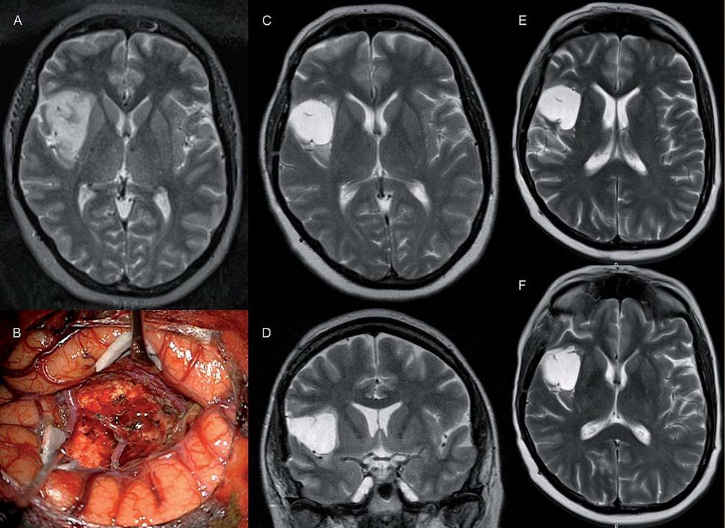 U pacientky 45leté pacientky (pacientka 7) s progredujícím nevelkým reziduem (C, D) (původně 4 cm3) fibrilárního astrocytomu WHO II v pravé inzule (A, B) došlo po radioterapii s chemopotenciací k úplné regresi T1 hypoa T2 hyperintenzity (E, F). Pacientka je neurologicky intaktní a bez epileptických záchvatů.