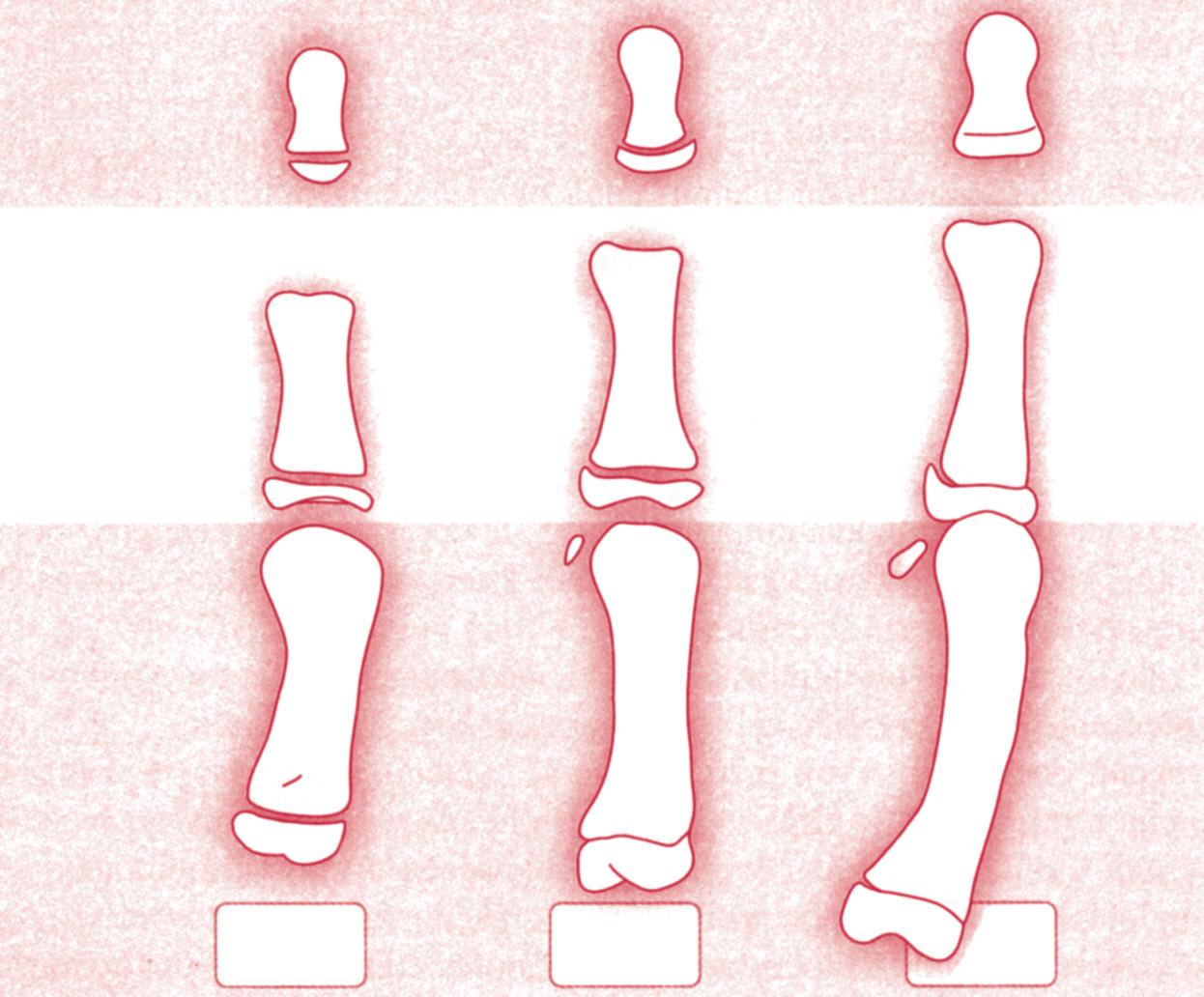 Kostní maturace ve vztahu k růstovému spurtu: distální falanga třetího prstu DPh3, proximální falanga prvního prstu PPh1, první metakarp MTC1. A – před spurtem, B – v době spurtu, C – při menarche.