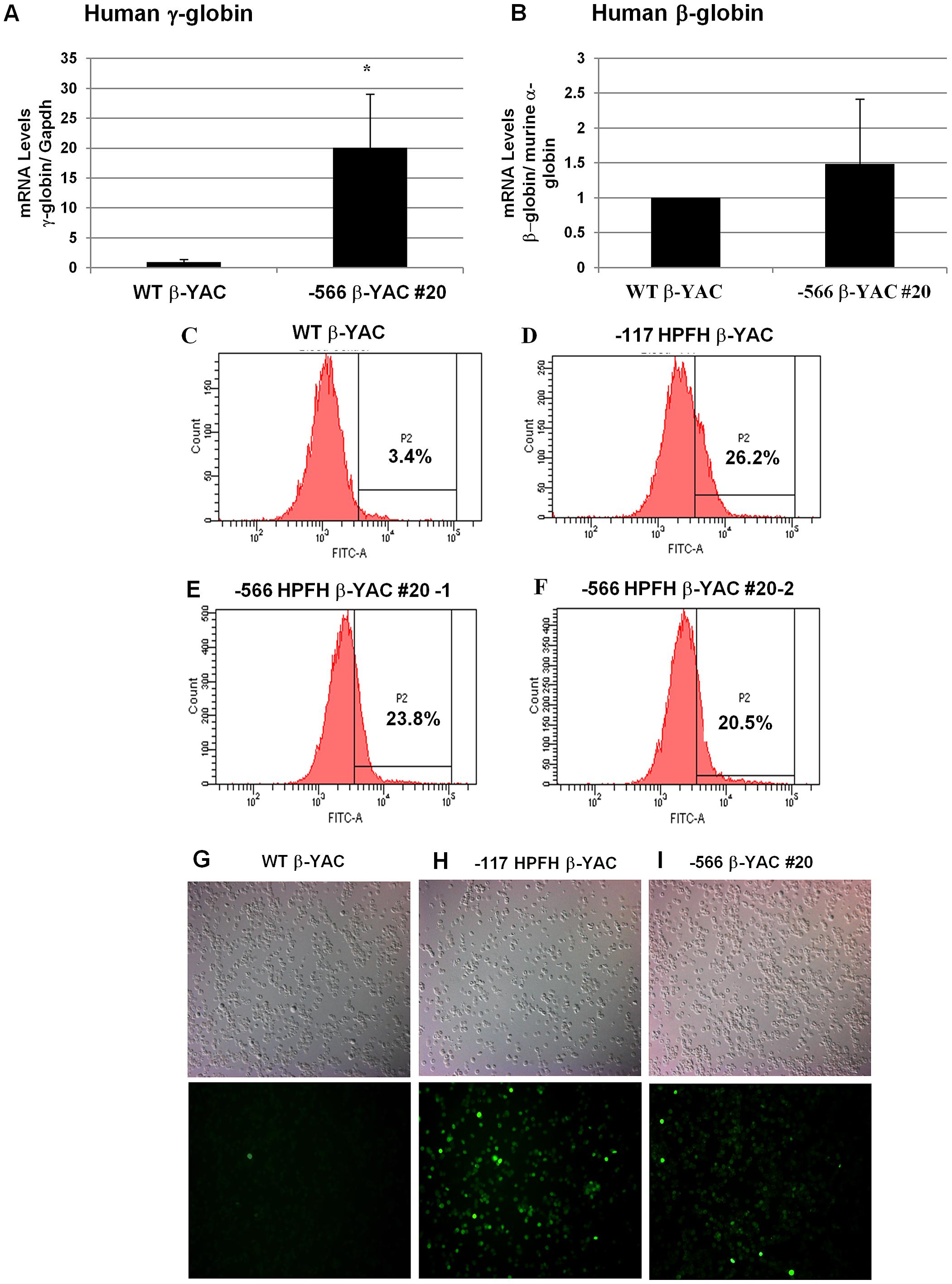 Human β-like globin expression in adult −566 <sup>A</sup>γ-globin HPFH β-YAC transgenic mice.