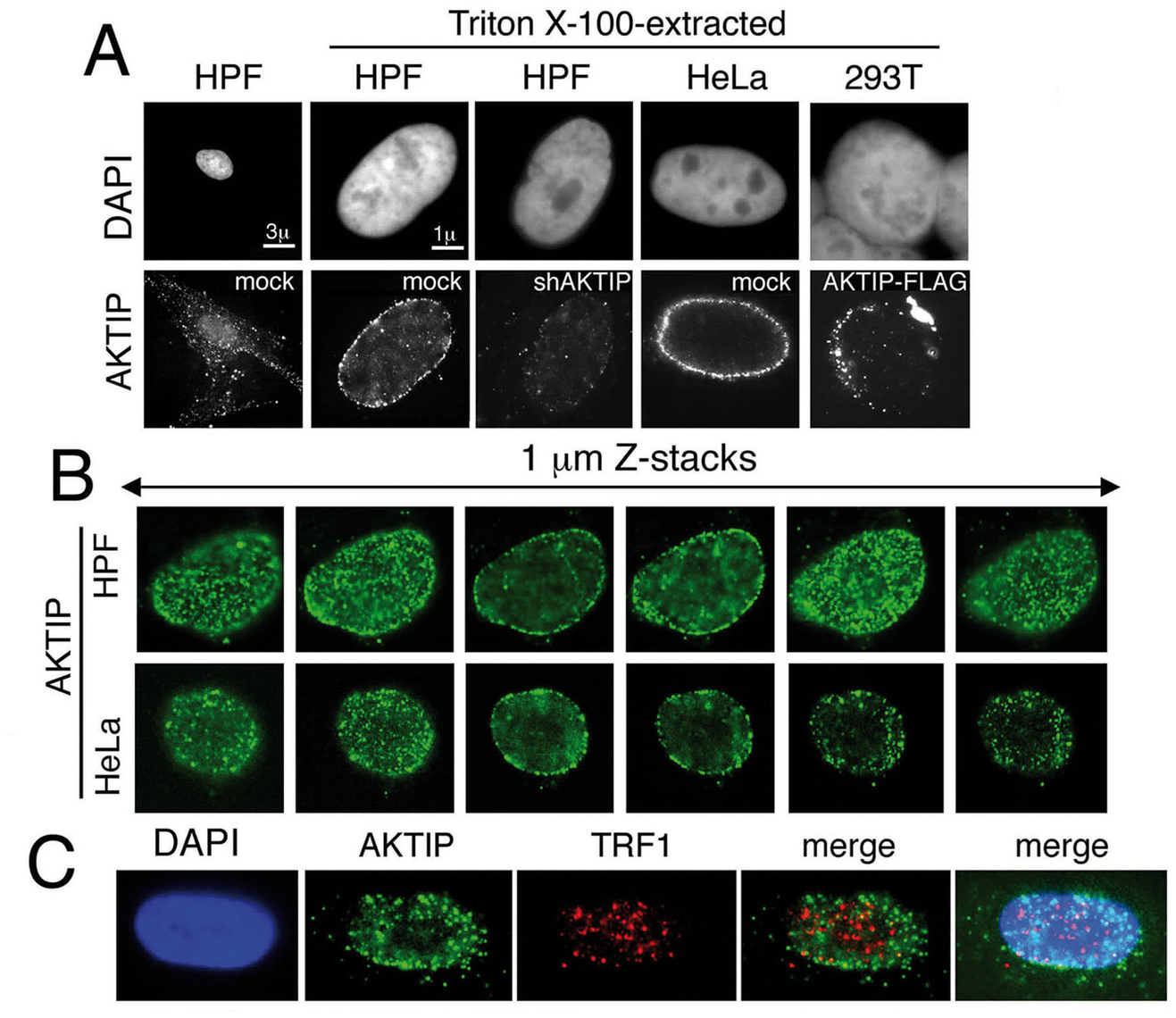 AKTIP localizes at the nuclear periphery.