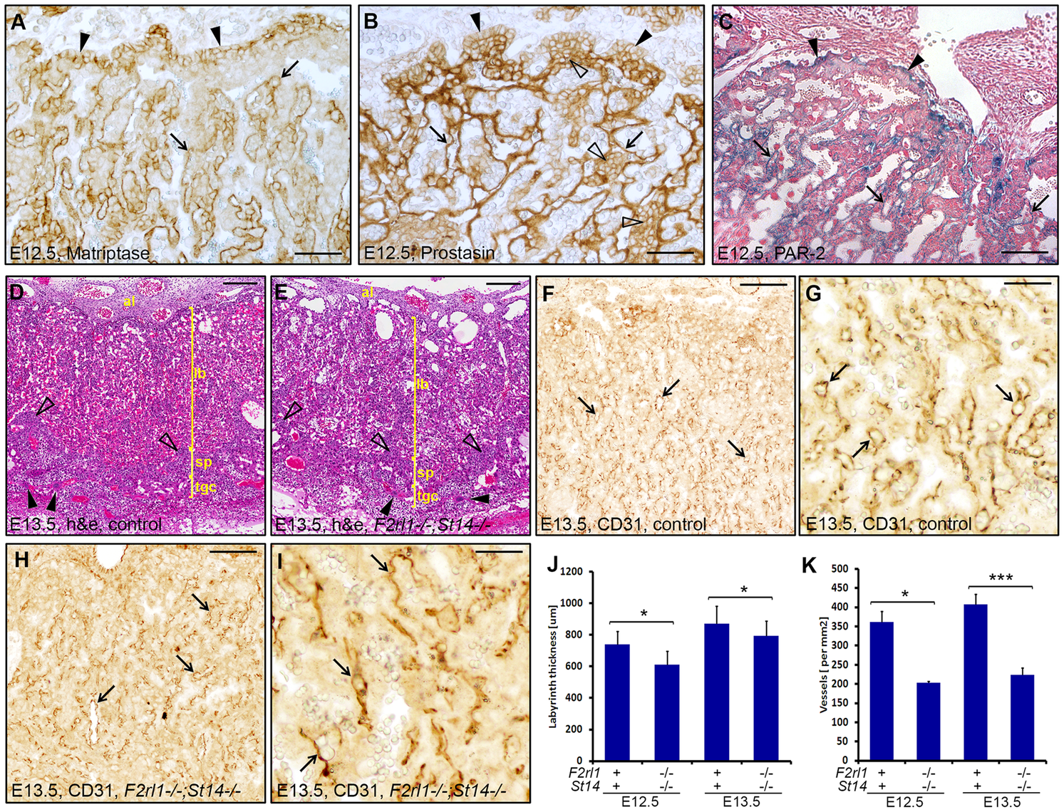 A combined loss of PAR-2 and matriptase leads to underdevelopment of placental labyrinth.