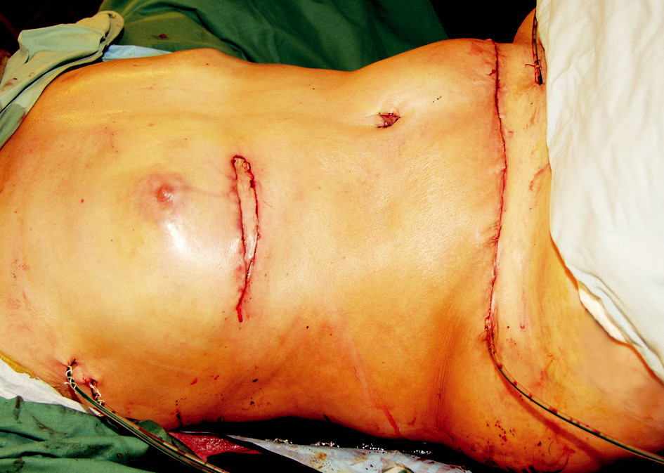 Fig. 3b. Immediate postoperative view. The visible flap skin has almost normal colour, but slow capillary refill was evident. Please note the bulge on the left side of the abdomen