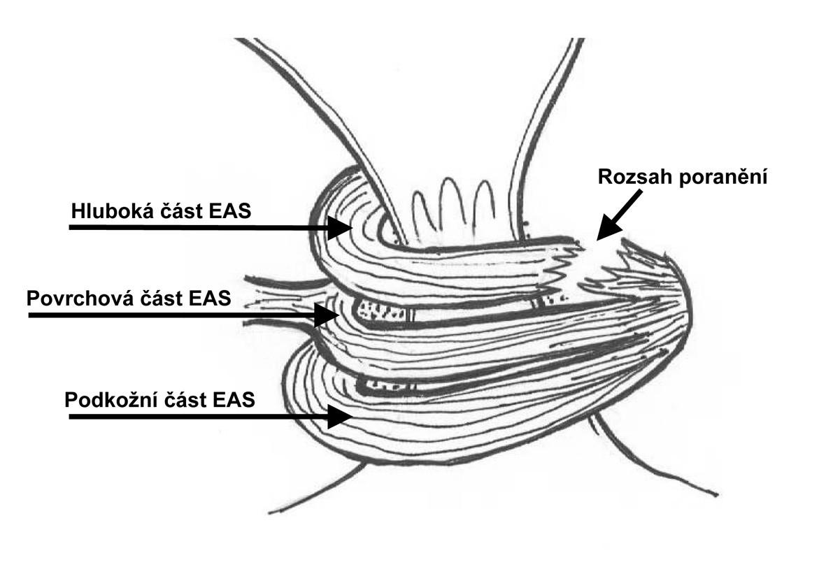 Ruptura laterální části EAS