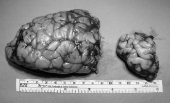 Pacient 2, dívka 7 měsíců. (Stp. anatomické hemisférektomii. Četnost EP paroxů snížena, spastická hemiparéza).