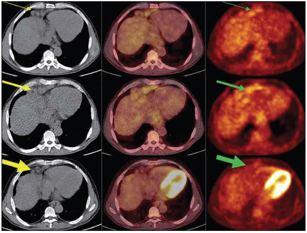 PET/ CT vyšetření: obrazy CT (vlevo), PET- CT (uprostřed) a PET (vpravo) v axiálním řezu v úrovni uzlinového paketu v bráničním úhlu ventrálně vpravo.